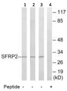 Western blot - SFRP2 antibody (ab92667)