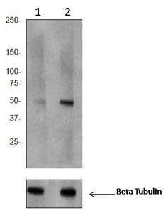 Western blot - Tau (phospho S404) antibody [EPR2605] (ab92676)