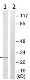 Western blot - C1QC antibody (ab92689)