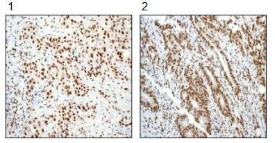 Immunohistochemistry (Formalin/PFA-fixed paraffin-embedded sections) - SMAD5 (phospho S463 + P465) antibody [MMC-1-104-3] (ab92698)