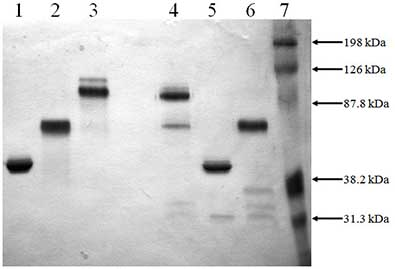 SDS-PAGE - PAI1 + tPA protein (Mouse) (ab92709)