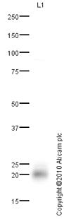 Western blot - Niemann Pick C2 antibody (ab92736)