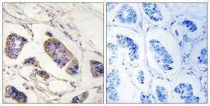 Immunohistochemistry (Formalin/PFA-fixed paraffin-embedded sections) - PEX7 antibody (ab92779)