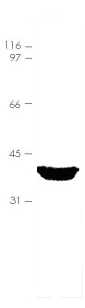 Western blot - Annexin A3 protein (His tag) (ab92814)