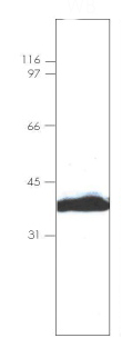 Western blot - Annexin IV protein (His tag) (ab92815)