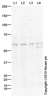 Western blot - Anti-Caspase-10 antibody (ab92844)