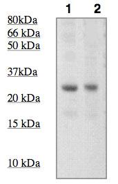 Western blot - SOCS3  antibody (ab92860)