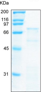 SDS-PAGE - MMP11 protein (Tagged-His Tag) (ab92861)