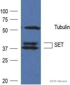 Western blot - SET antibody (ab92872)