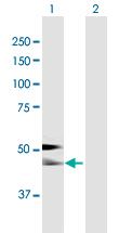 Western blot - Alpha 2 HS Glycoprotein antibody (ab92879)