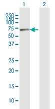 Western blot - Rbm15 antibody (ab92881)