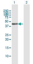 Western blot - SCRN2 antibody (ab92882)