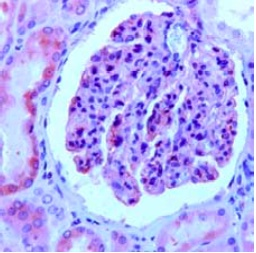 Immunohistochemistry (Formalin/PFA-fixed paraffin-embedded sections) - Nephrin antibody (ab92887)
