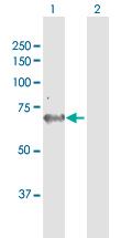Western blot - AK5 antibody (ab92900)
