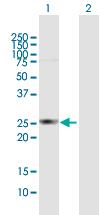 Western blot - HDHD3 antibody (ab92901)
