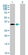 Western blot - LDHA antibody (ab92903)
