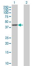 Western blot - NSDHL antibody (ab92904)