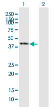 Western blot - SERPINB1 antibody (ab92907)