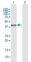 Western blot - ACADS antibody (ab92911)