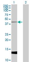 Western blot - Styk1 antibody (ab92912)