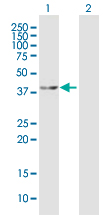 Western blot - MEK4 antibody (ab92913)