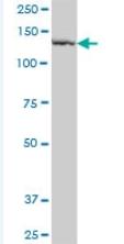 Western blot - PLB1 antibody (ab92915)