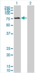 Western blot - DDX5 antibody (ab92917)