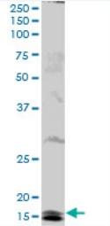 Western blot - Ube2B antibody (ab92919)