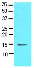 Western blot - CRABP1 antibody [AT1A1] (ab92927)