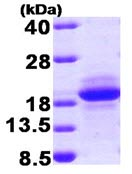 SDS-PAGE - MCFD2 protein (T7 Tag) (ab92930)