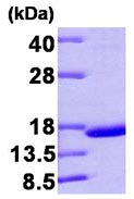 SDS-PAGE - Prealbumin protein (Human) (ab92931)
