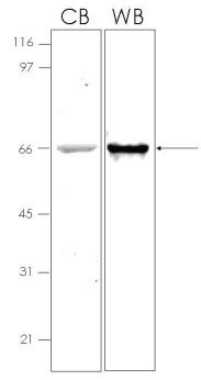 SDS-PAGE - TIMP1 protein (MBP) (ab92963)
