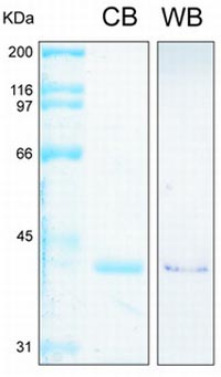 SDS-PAGE - Annexin II protein (His tag) (ab93005)