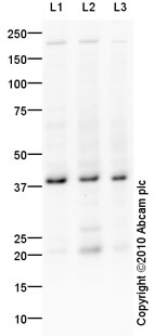 Western blot - DKK1 antibody (ab93017)