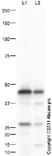 Western blot - Chitinase 3 like protein 3 antibody (ab93034)