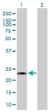 Western blot - PCTP antibody (ab93035)