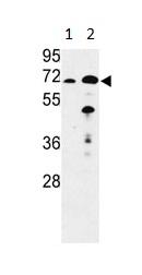 Western blot - EHHADH antibody (ab93172)