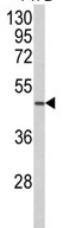 Western blot - NCF1C antibody (ab93185)