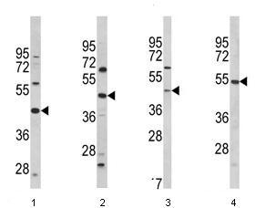 Western blot - PTAR1 antibody (ab93212)