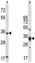 Western blot - ACY3 antibody (ab93230)