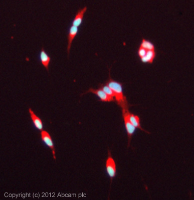 Immunocytochemistry/ Immunofluorescence - Anti-nkx6.3 antibody (ab93235)