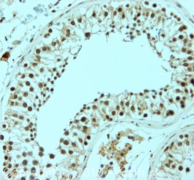 Immunohistochemistry (Formalin/PFA-fixed paraffin-embedded sections) - Nanog antibody (ab93240)