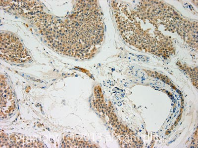 Immunohistochemistry (Formalin/PFA-fixed paraffin-embedded sections) - Anti-Humanin antibody (ab93253)