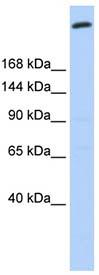 Western blot - Giantin antibody (ab93281)