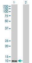 Western blot - S100A4 antibody (ab93283)