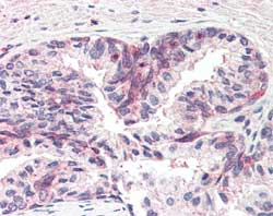 Immunohistochemistry (Formalin/PFA-fixed paraffin-embedded sections) - MSX1 antibody (ab93287)