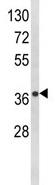 Western blot - Nudel antibody (ab93339)