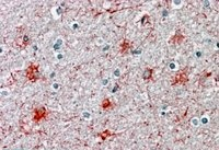 Immunohistochemistry (Formalin/PFA-fixed paraffin-embedded sections) - Anti-P2RX7 antibody (ab93354)