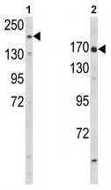 Western blot - RhoGAP antibody (ab93375)