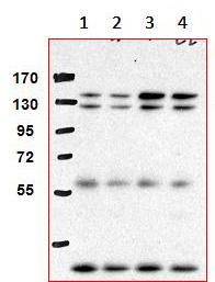 Immunoprecipitation - AHI1 antibody [M5] (ab93386)